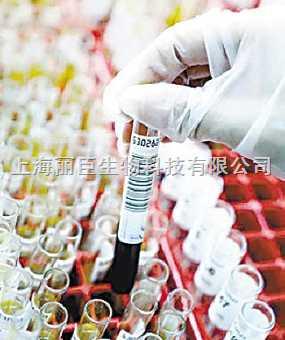 人少突先驱胶质细胞 HOPC